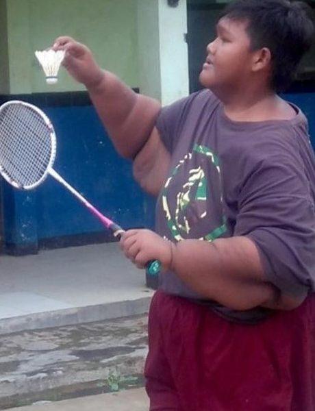 nino-obeso1